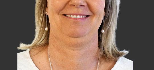 fedtsugning af hals hos Bonnie Erichsen